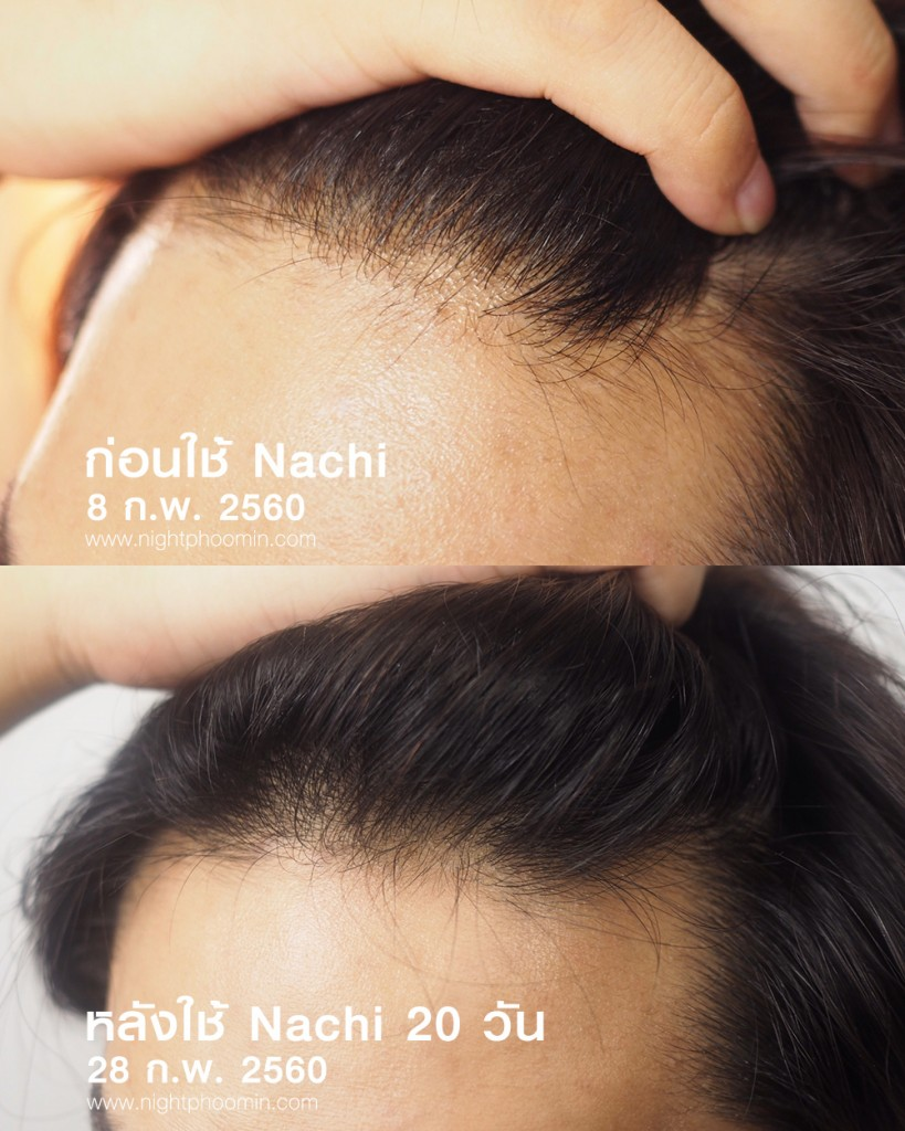 Nachi-anti-loss-hair-11