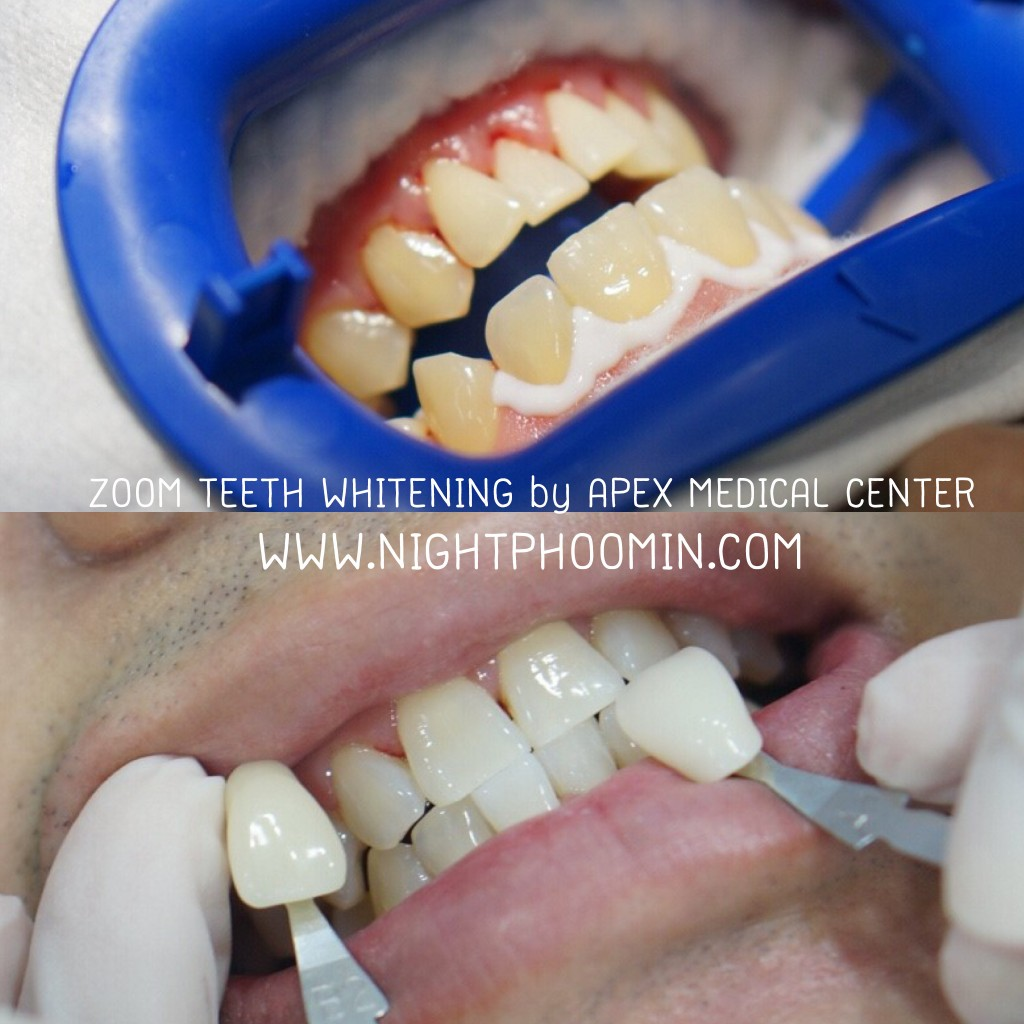 ZOOM-TEETH-WHITENING-3-1