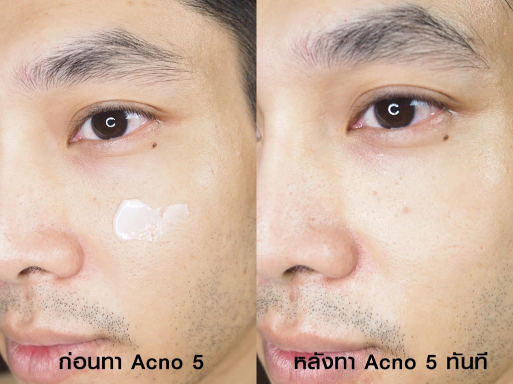 acno5-7-nightphoomin
